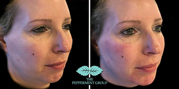 Non-Surgical Facelift & Aesthetics in Glasgow | Peppermint